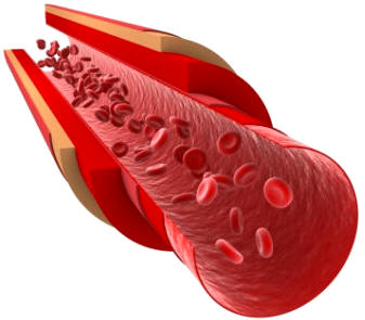 Cascada de coagulacion sanguinea